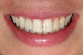 after the dental implant