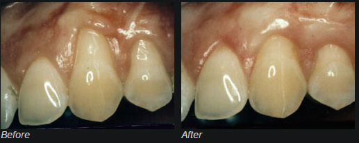 Gum Recession Before and After