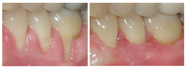 Root Caries Before and After